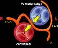 Koroner Arter Anomalileri