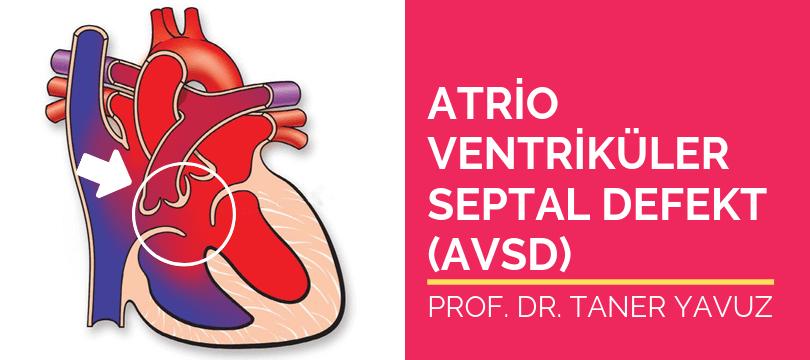 Atrioventriküler septal defekt AVSD