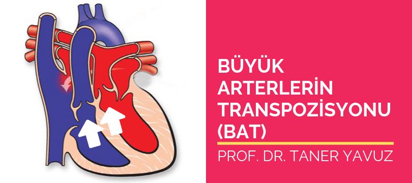 Büyük arterlerin transpozisyonu TGA