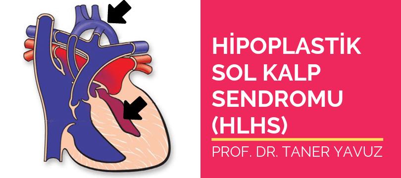 Hipoplastik sol kalp sendromu HLHS