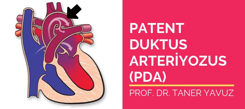 Patent duktus arteriyozus PDA