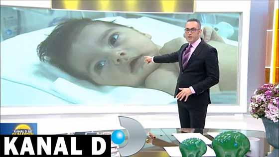 Pulmoner Atrezide Duktal Stent | Kanal D