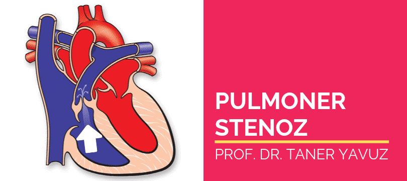 Pulmoner kapak darlığı Pulmoner Stenoz