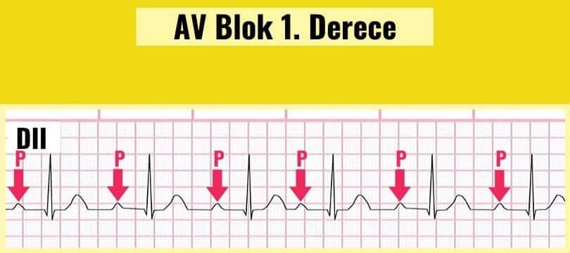 AV Blok 1. derece