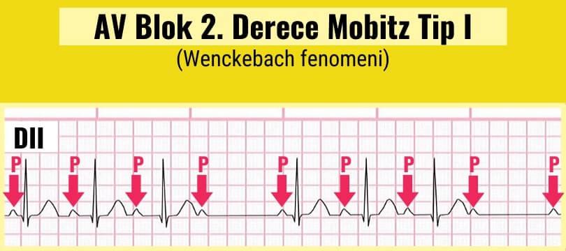 AV Blok 2. derece Mobitz Tip I