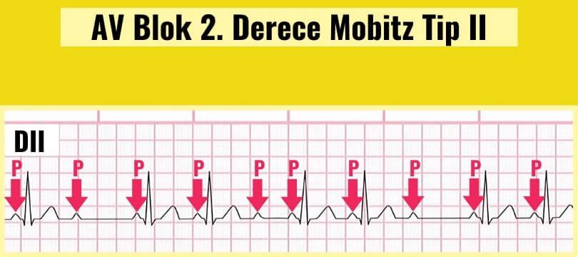 AV Blok 2. derece Mobitz Tip II