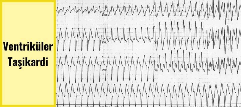 ventriküler taşikardi ekg