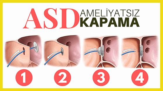 Ameliyatsız atrial septal defekt kapatma