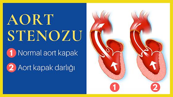 Aort kapak darlığı (stenoz)