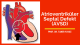 Atrioventriküler septal defekt (AVSD)
