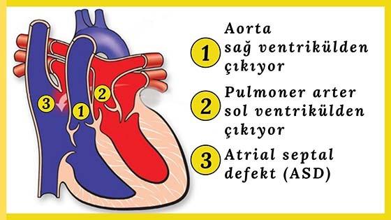 Büyük Arter Transpozisyonu (d-tga)