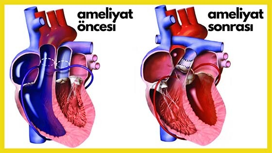 Büyük arter transpozisyonunda switch ameliyat