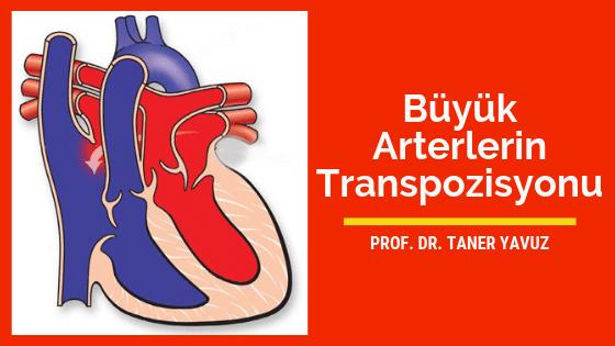 Büyük arterlerin transpozisyonu (d-tga)