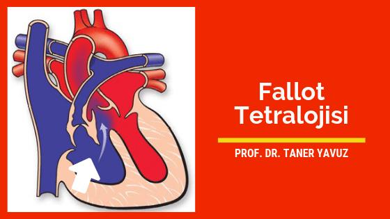 Fallot tetralojisi (mavi bebek hastalığı)