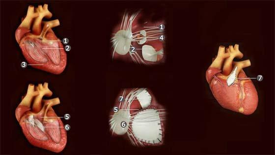 Fallot Tetralojisinde Tam Düzeltme (korreksiyon) Ameliyatı