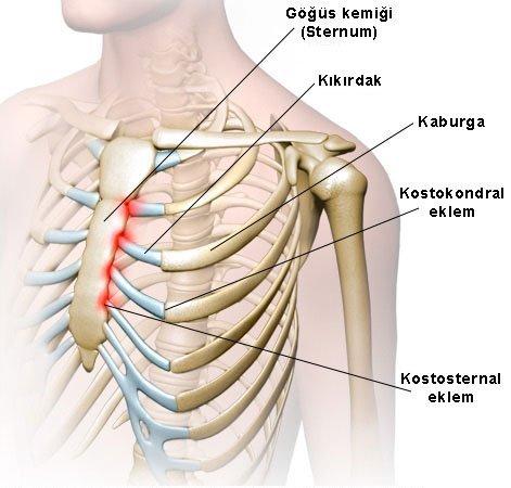 Kostokondrit göğüs ağrısında ağrı bölgeleri