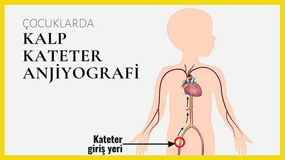 Kalp kateterizasyonu