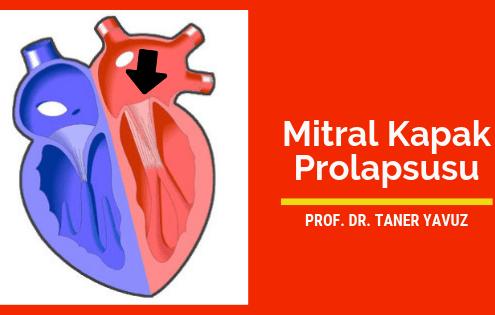 Mitral Kapak Prolapsusu (MVP)