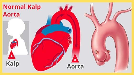 Normal aorta