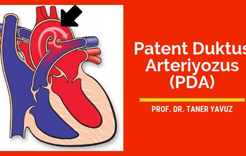 Patent duktus arteriyozus (PDA)