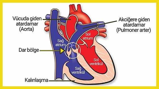 Pulmoner Stenoz (Valvüler)