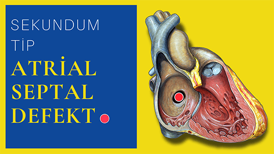 Sekundum tip atrial septal defekt