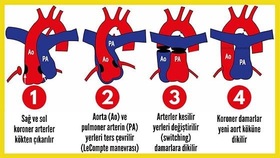 Modifiye Jaten arteriyel switch ameliyatı