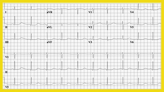Uzun QT sendromu EKG