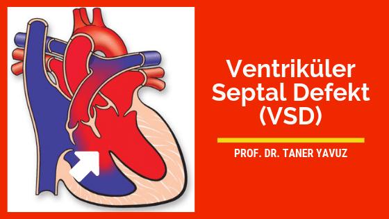 Ventriküler septal defekt (VSD)