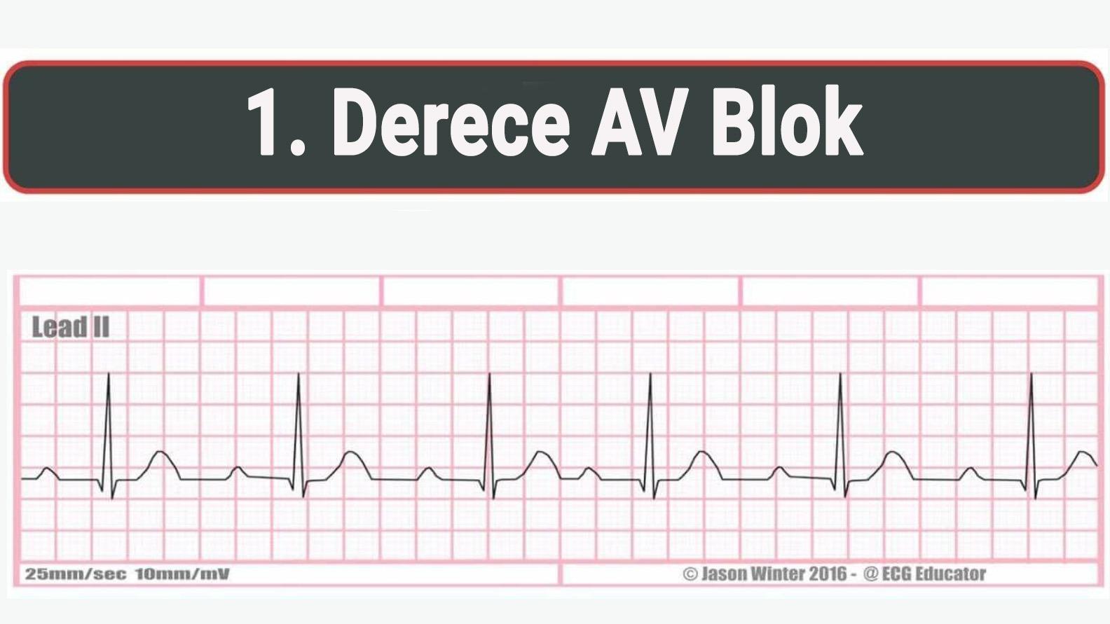AV Blok Ekg Birinci Derece Örneği