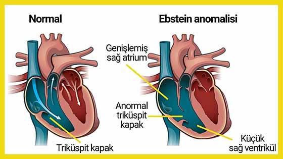 Ebstein anomalisinin şematik görünümü