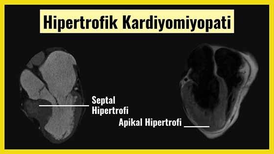 Hipertrofik kardiyomiyopati MR