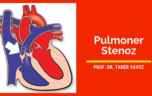 pulmoner kapak darlığı (PS)