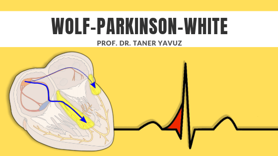 wolf parkinson white sendromu